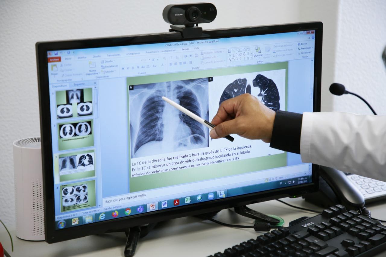 Daño pulmonar por Covid-19 / IMSS